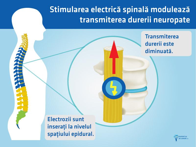 Stimulare electrica spinala durere neuropata