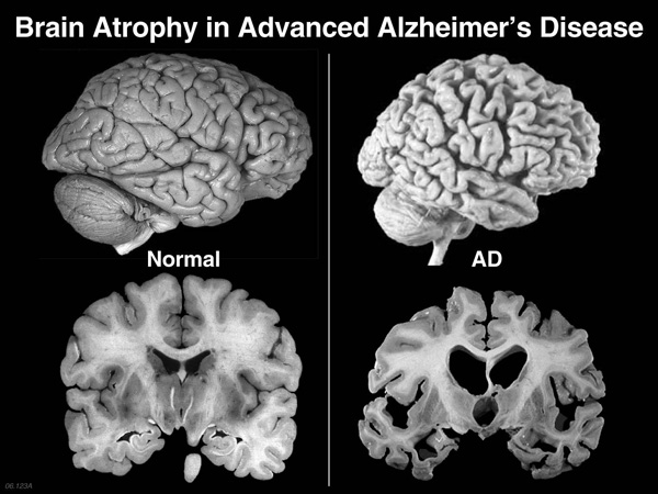 Creier normal vs creier atrofiat boala Alzheimer
