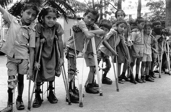 poliomielita istorie copii paralizati