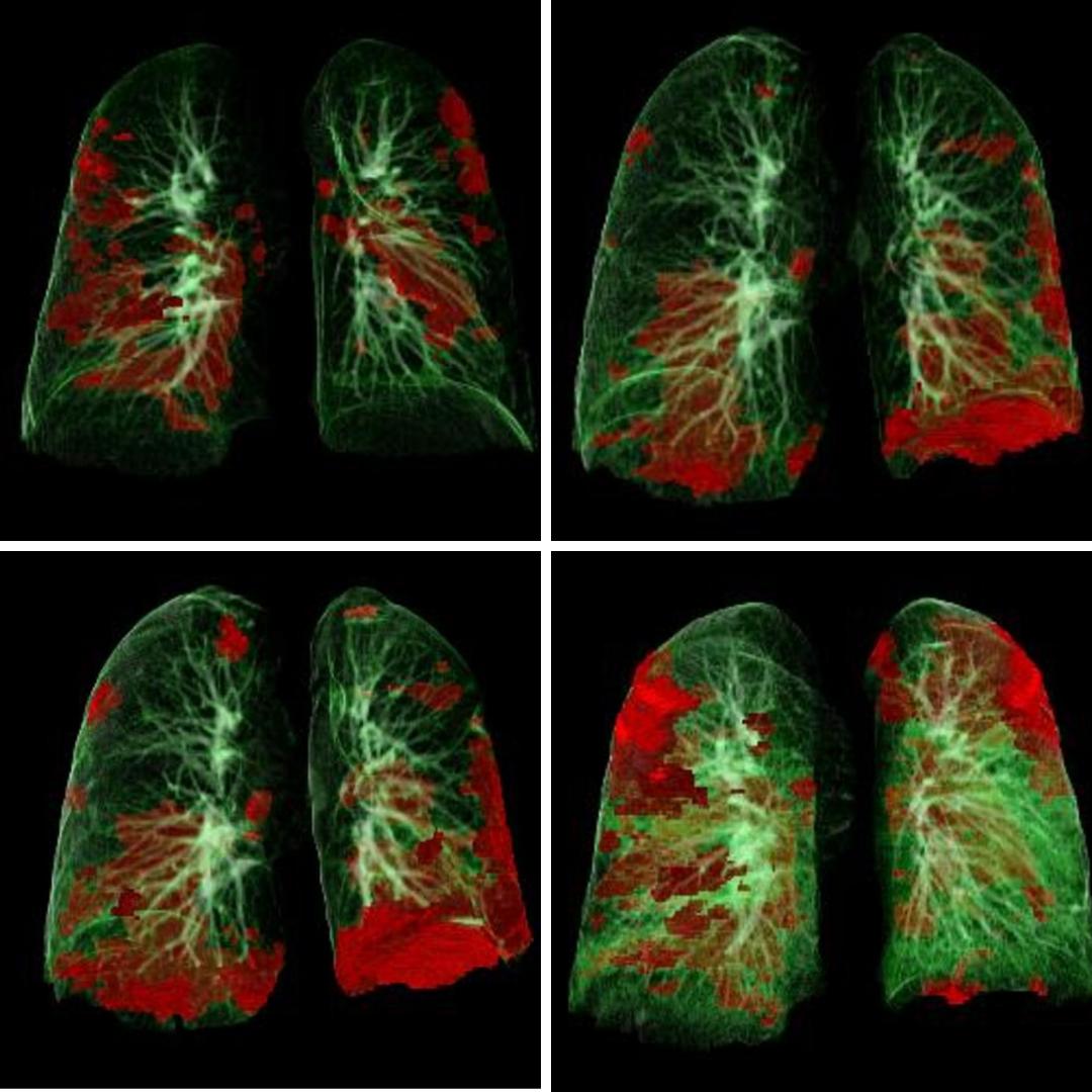 Imagini CT leziuni pulmonare COVID0-19