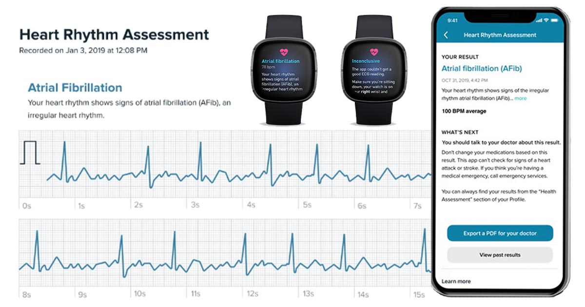 FDA aprobă Fitbit ECG, aplicație pentru monitorizarea ritmului cardiac