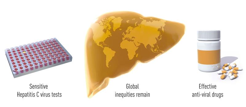 Situația actuală în privința VHC. Premiul Novel pentru Medicină sau Fiziologie 2020: Descoperirea virusului hepatitic C