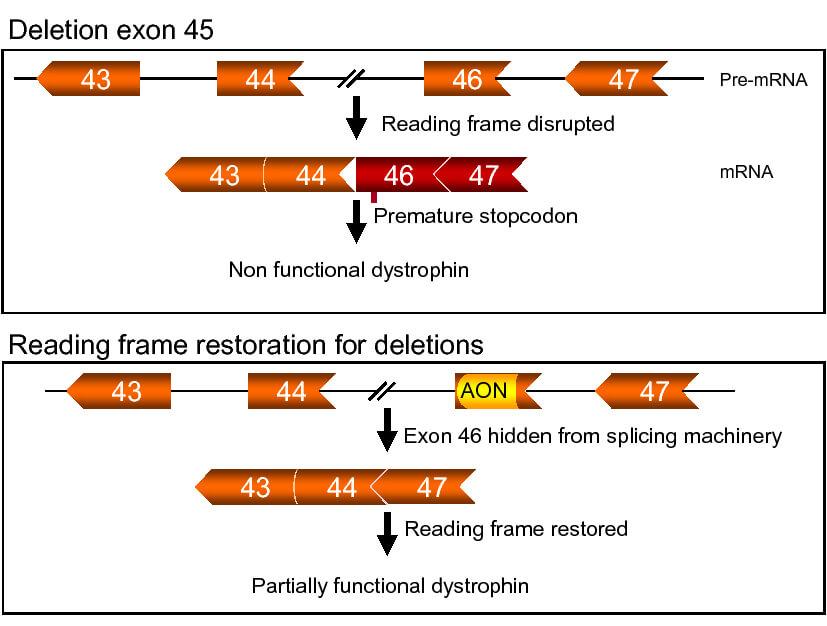 exon 45 skipping distrofie musculara duchenne-2