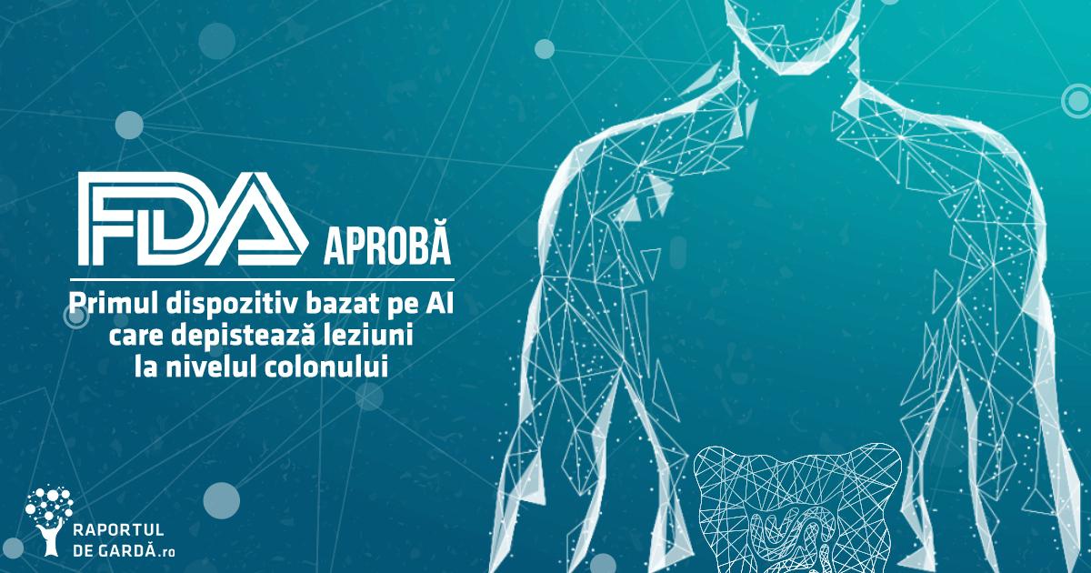 FDA aprobă primul dispozitiv AI care depistează leziuni la nivelul colonului