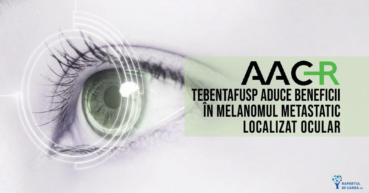 Tebentafusp este eficient ca primă linie de tratament în melanomul uveal metastatic