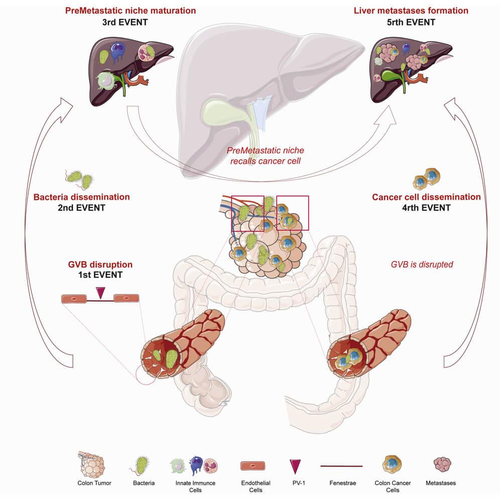 bariera vasculara intestinala metastaza hepatica cancer colorectal