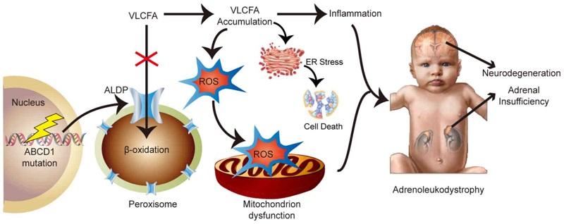 schema mecanism molecular patogenic adrenoleucodistrofie